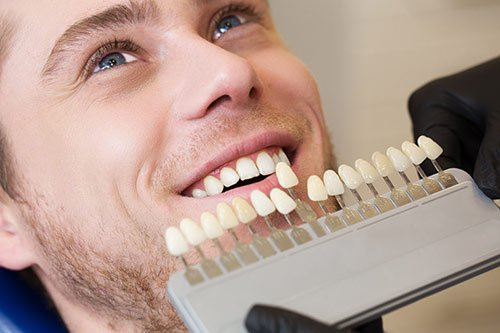 Cosmetic-Dentistry-vaneers